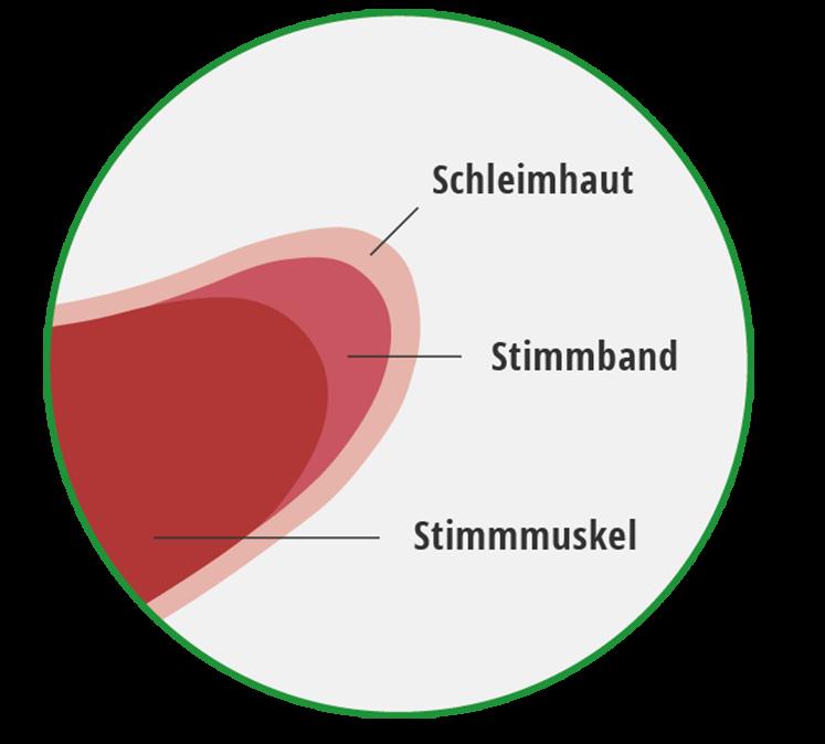 Grafik über den Aufbau der Stimmlippe mit Schleimhaut, Stimmband und Stimmmuskel.